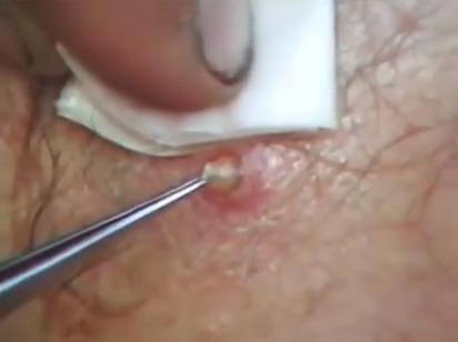 Muž má pod kůží na zádech larvy , na videu mu je odstraňují , jen pro silné povahy !